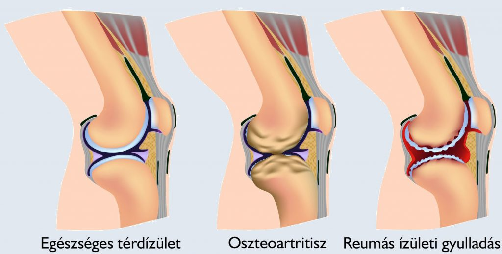 térdízület akut fájdalma eszközök a kúpok felszívódására az ízületeken