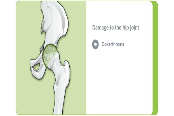 femoralis coxarthrosis kezelés méhterápia artrózis esetén