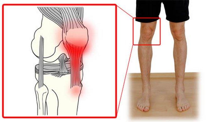 Ízületi kezelés monicában - Az ízületi fájdalom tünetei, okai és kezelései
