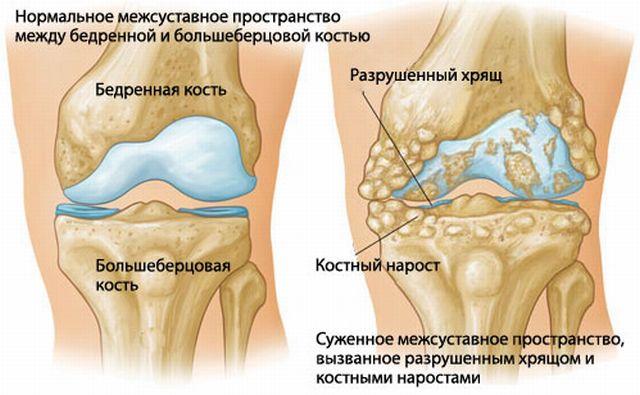a csípőízület fáj a nyújtás után