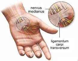 duzzadt és fáj a gyűrűs ujj miért fáj a kéz és az ujj ízülete