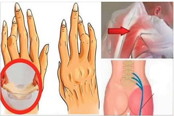 krónikus ízületi fájdalmak vírusai