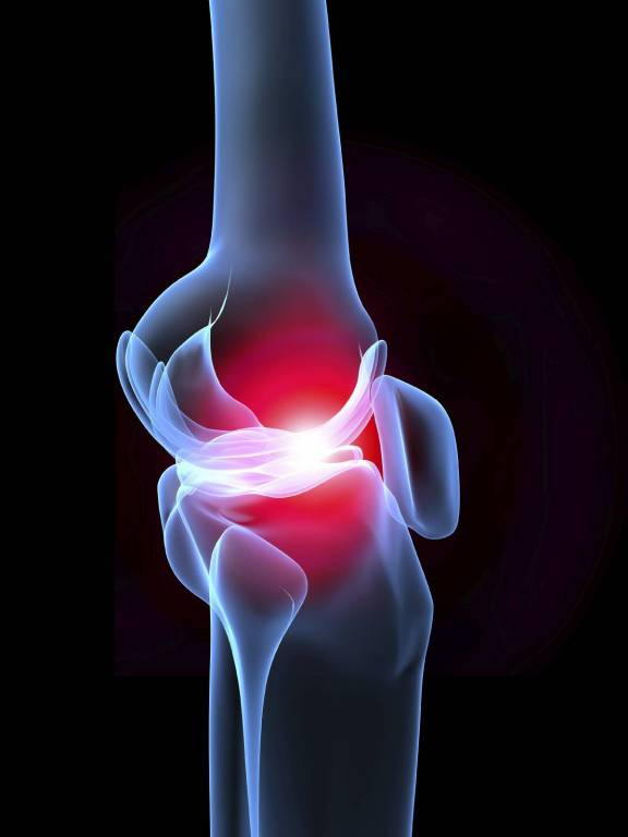 a lábízület ízületi ízületi gyulladása okozza a teendőt