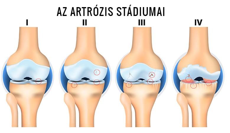 artrózis 1 2 fokos csípőízület kezelés artróziskezelési iskola