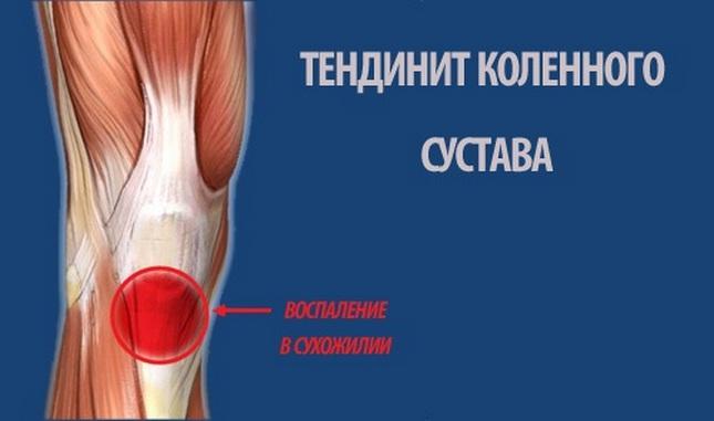 vállízület osteoarthrosis kezelése 2 fokkal