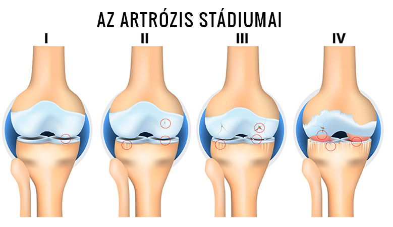 kenőcsök térd artritisz kezelésére