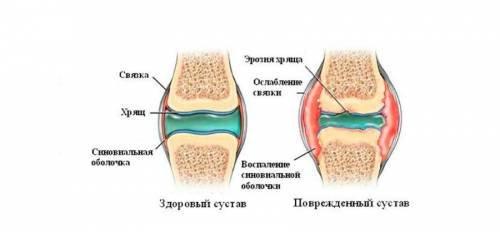 chondroprotektorok a térdízület artrózisához intramuszkulárisan hogyan lehet enyhíteni a térd ízületi gyulladását