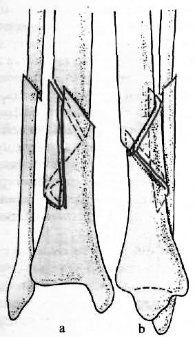 Visszér ilizarov