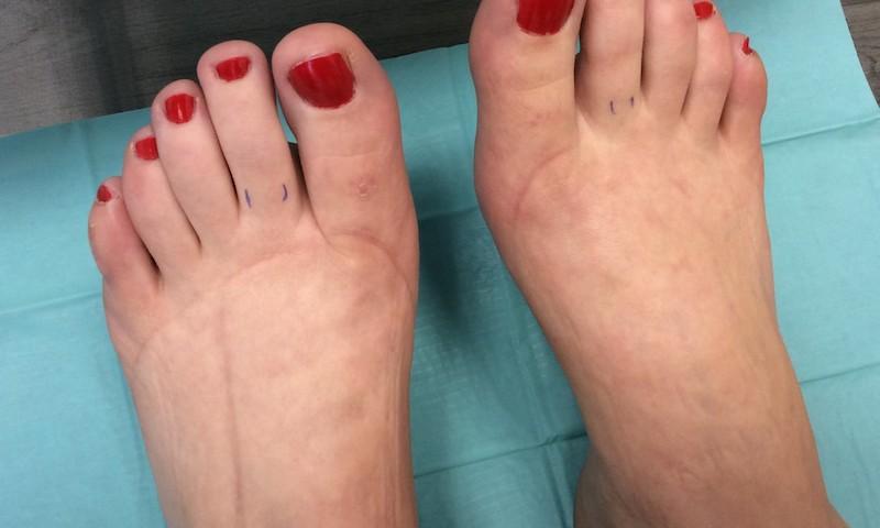 elfordítja a lábak fájó ízületeit a lábujjak ízületének gyulladása
