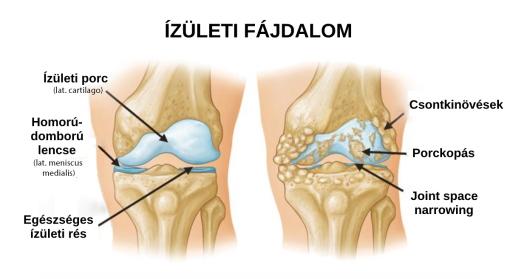 a karok és a lábak ízületei fájnak a kezelést könyökgyulladás