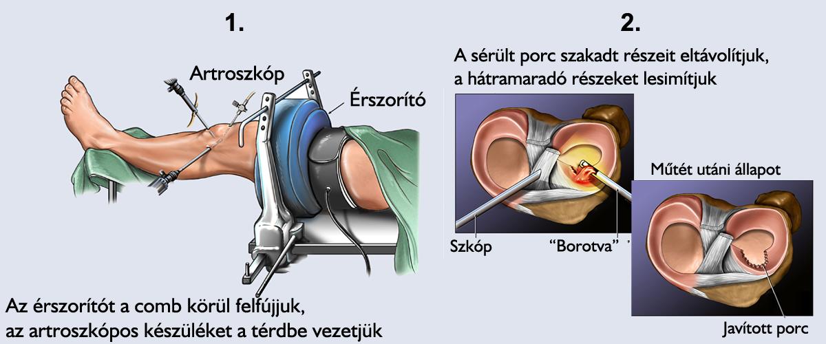 a térd belső oldalsó ínszalagjának kezelése)