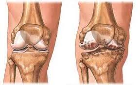 fáj az alsó lábszár ízülete térdízületek ízületi kezelés torna
