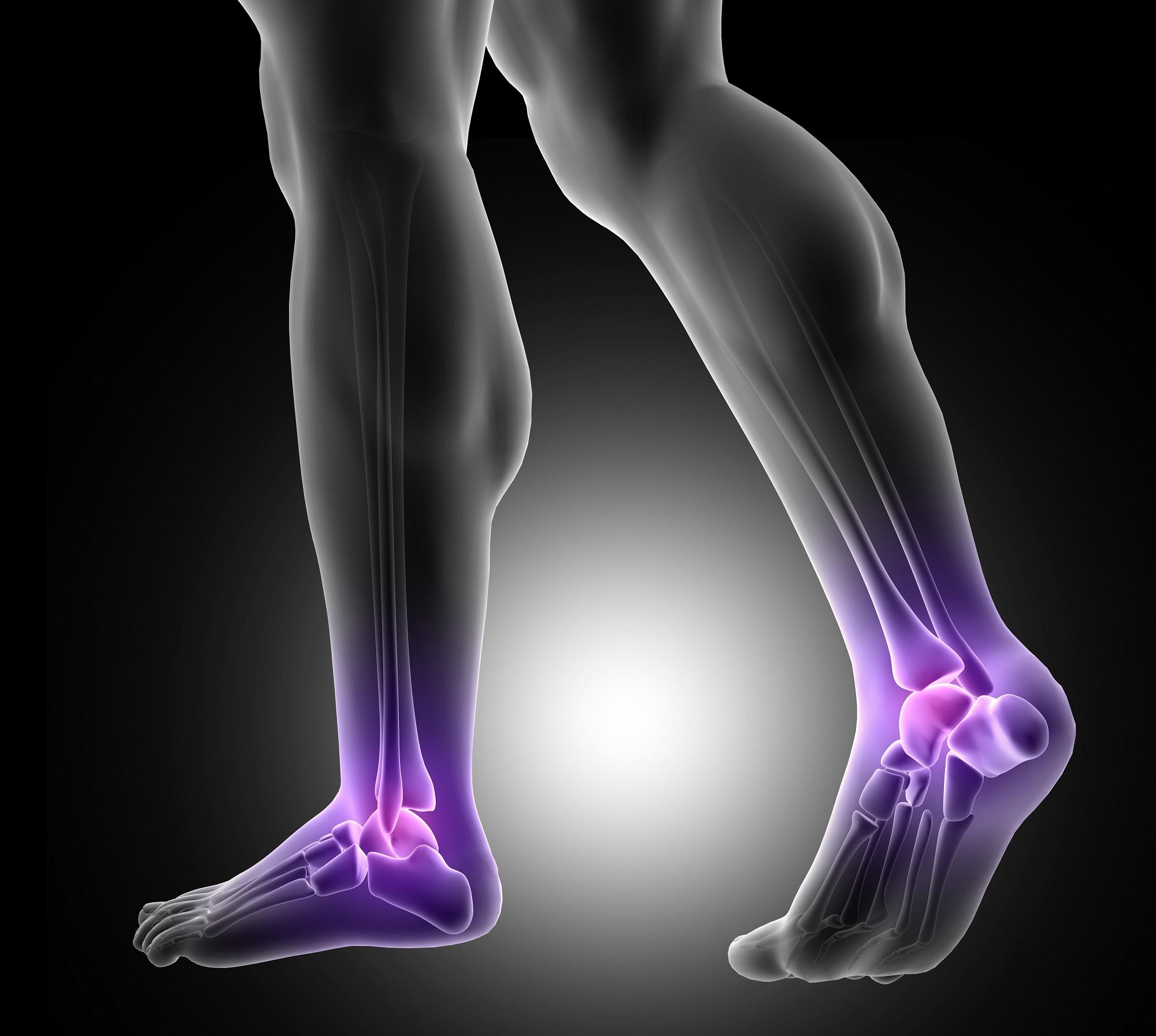 a lábak ízületeiben fájdalomcsillapítók