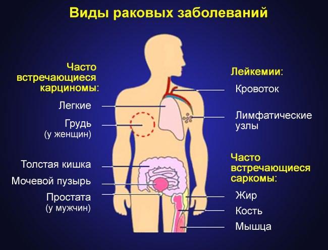 gyógyítja a térd szinovitist 1 fokos kezelés a kéz ízületi gyulladása