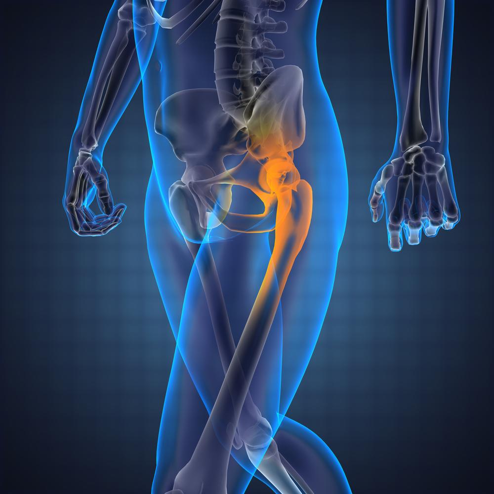 csípőfájdalom és kezelés