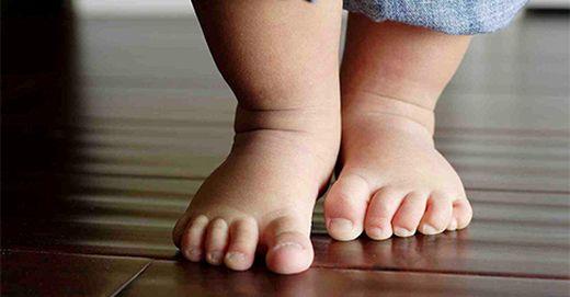 fájdalom a csípő dysplasiaban gyermekeknél lupus erythematosus ízületi fájdalom