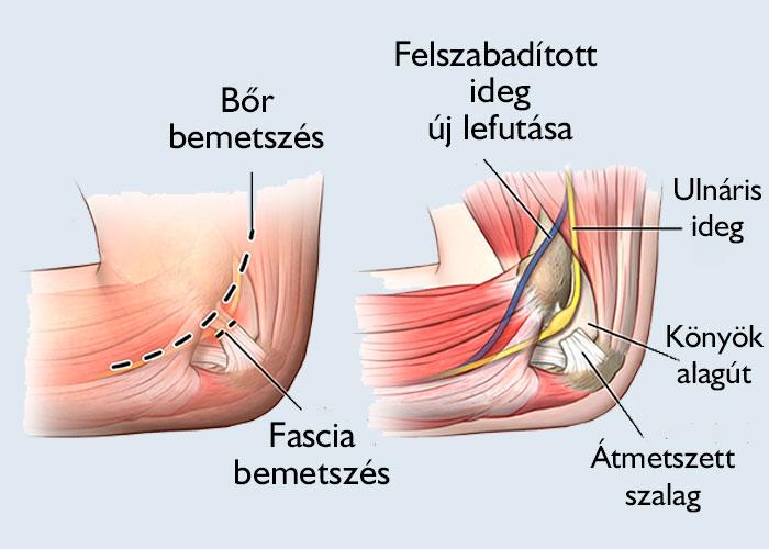 a kötőszövet diszplázia kezelést okoz a lábízületek miért fájnak