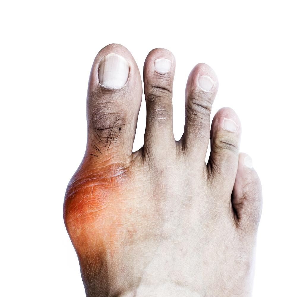 az ujjak ízületeinek ízületi gyulladása, mint kezelni körömvirág krém izületi gyulladásra