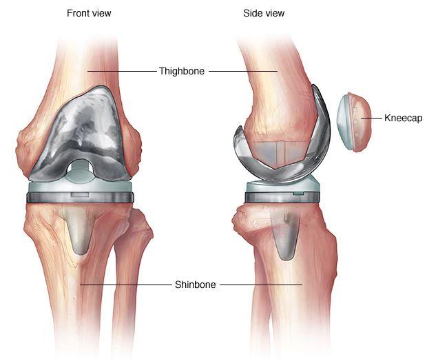 Térdízületi kenőcs tabletta artrózisa, EXTRA AJÁNLÓ