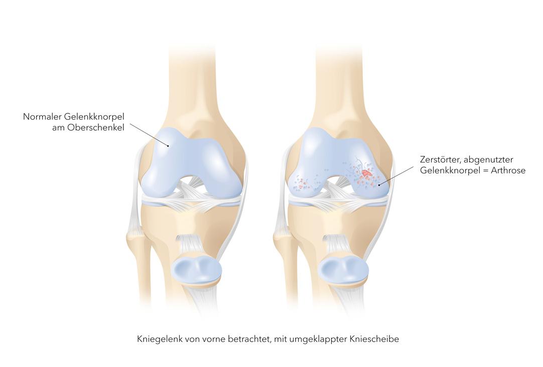 gonarthrosis a térdízület kezelése 3 fokban)