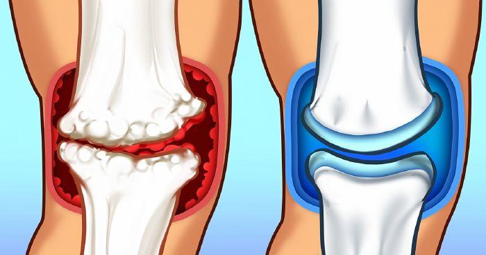 ízületi fájdalom tünetei trentalis csípőízület