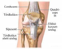 a térdízület kezelés oldalsó ínszalagjának részleges törése