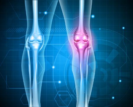 a térd osteochondrozisának kezelése kenőcsökkel az ózon artrózis kezelési áttekintése