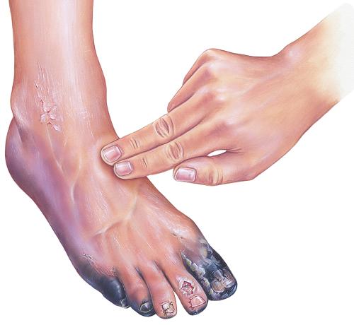 Nyugtalan láb szindróma tünetei és kezelése - HáziPatika