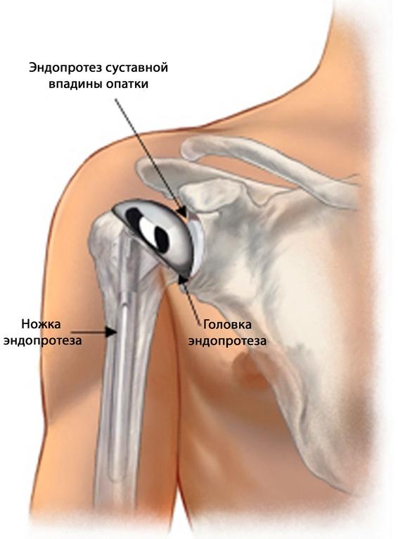 a boka ízületének kezelése mi kezelik az ízületi fájdalmakat