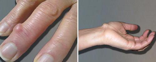 Kúpok okai és kezelése a kéz ízületein - Kezelés