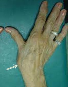 a hüvelykujj ízületének fájdalmainak okai a térd besorolása deformáló artrózisa