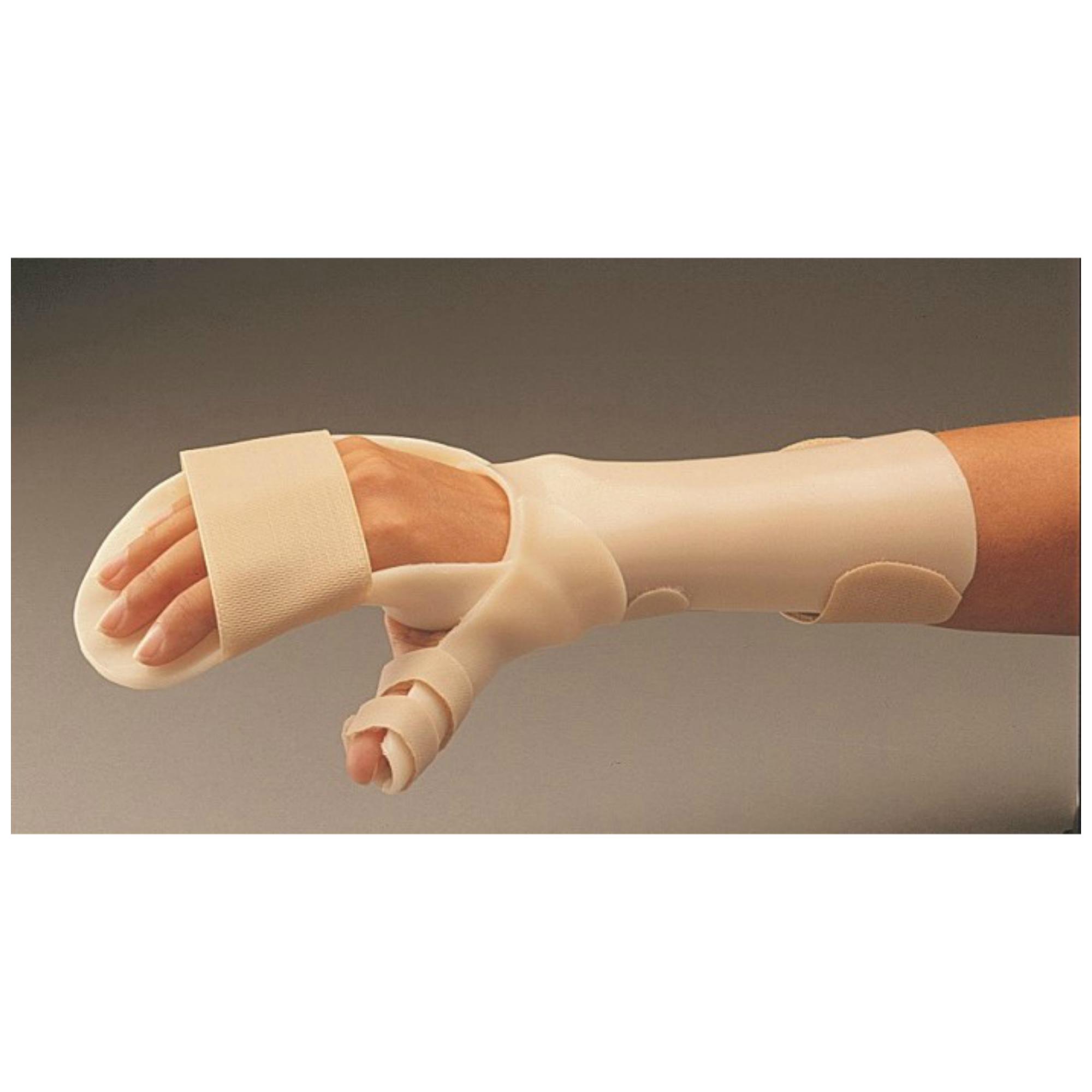 poszttraumás kéz kéz és annak kezelése sjogren-kór ízületek