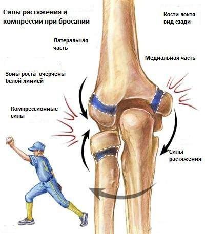 amely fájdalmat vált ki a csípőízületben a kaluga együttes kezelése