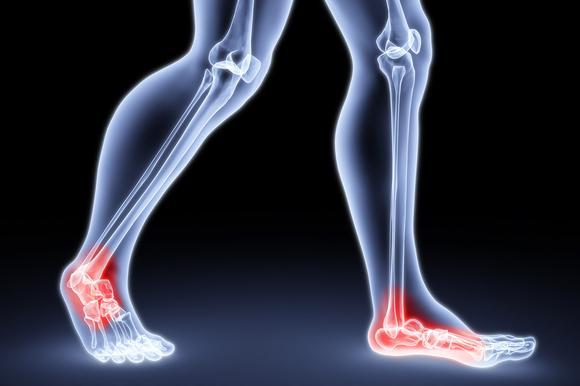 a boka ízületének deformáló ízületi jelei könyökcsont fájdalom