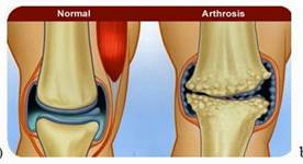 csuklóízületi fájdalom és kezelés