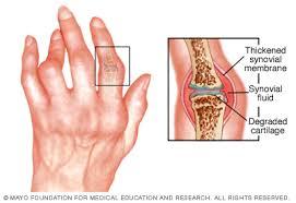 s. konovalov gerinc és ízületek betegsége kondroitin-szulfát és glükozamin artrózis kezelésére