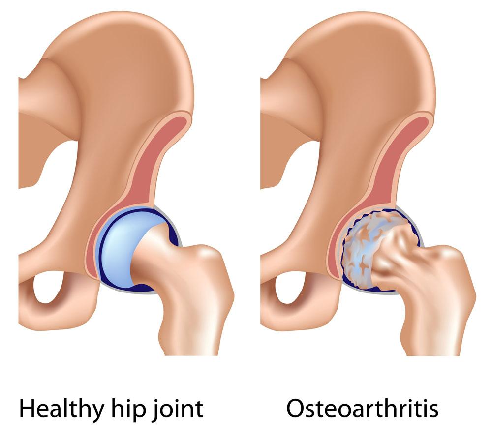 akut fájdalom csípőízület