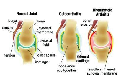 csípőízületi fájdalom kezelése cukorbetegség ízületi fájdalom