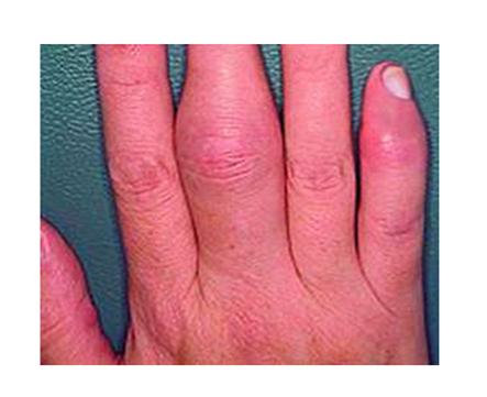 ízületi gyulladás ujjain akut fájdalom a könyökízületben edzés közben