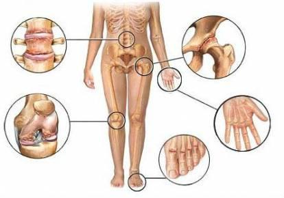 a vállízület deformáló artrózisa és kezelése
