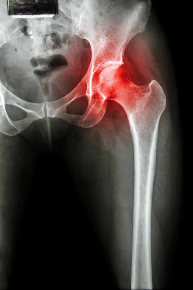 csípőízület fájdalma után ízületek perifériás ízületi gyulladása