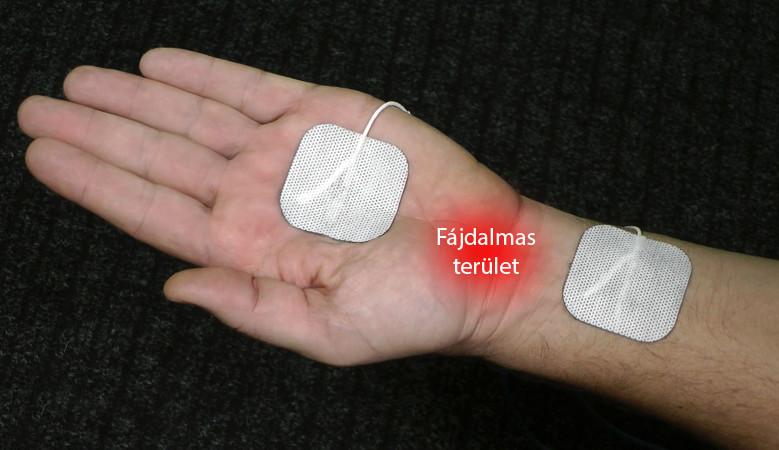a térd modern kezelése