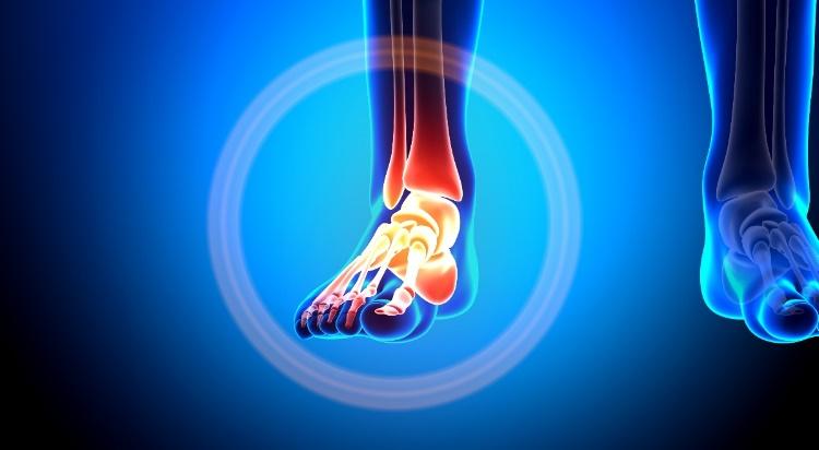 mi a térdízület edzés után könyökfájdalom