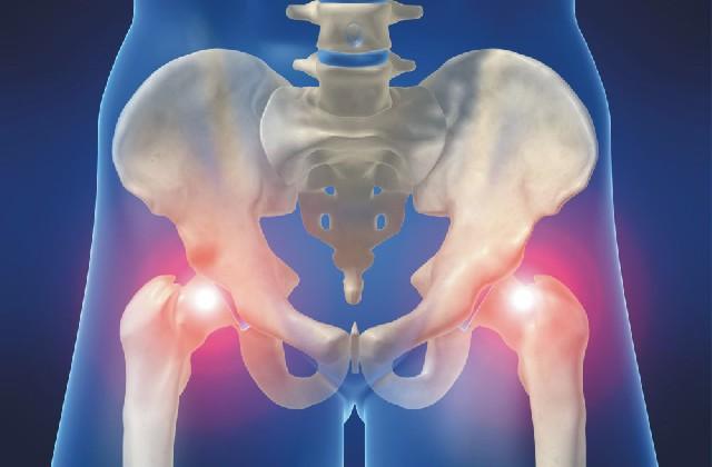 a csípőízület első fokú artrózisa fájdalom a lábujjak ízületeiben mi ez