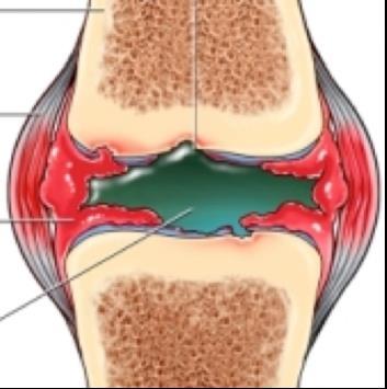 gennyes csontok és ízületek általános műtéte