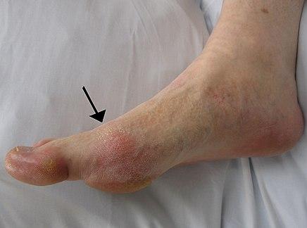részleges bokaszalag szakadás gyógytorna