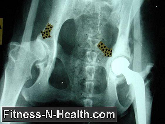 a coxarthrosis a csípőízület krónikus betegsége miért izületi fájdalommal