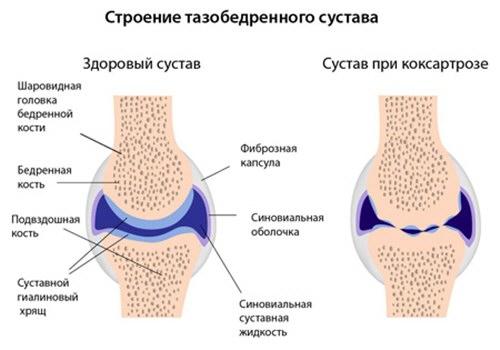 a csípőízület artrózisának mértéke erõs térdfájdalom