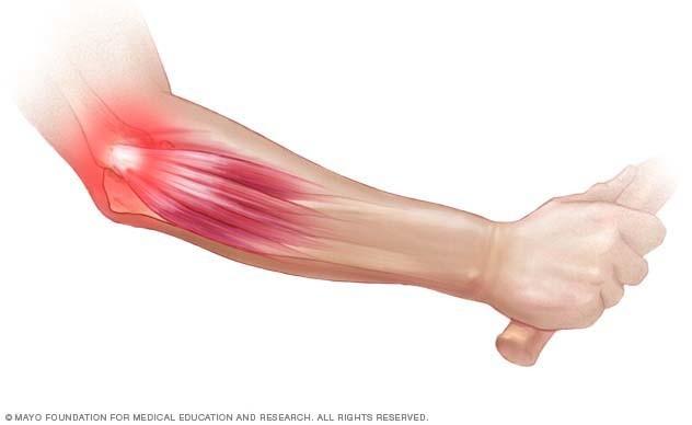 vyprosal ízületi fájdalom kötőszöveti betegségek immunrendszeri rendellenességekkel
