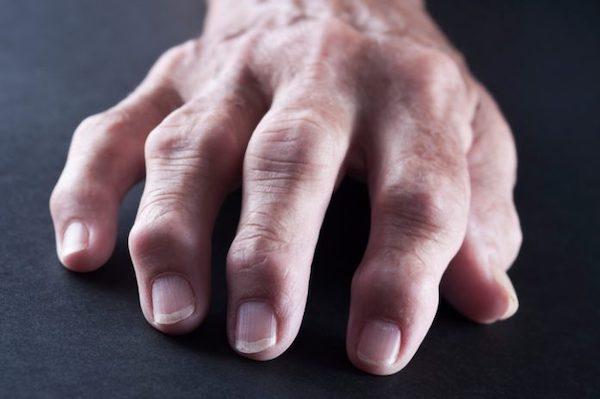 a kéz allergiás ízületi gyulladása